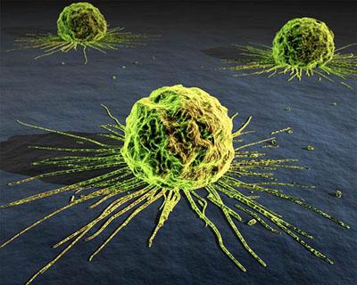癌症與排毒